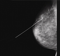 Poliklinika Eljuga - Biopsija dojke