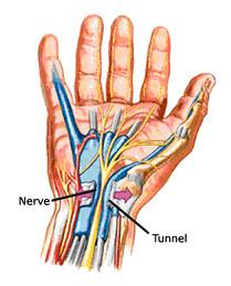 Sindrom karpalnog kanala - posljedica pritiska na živac koji kroz ručni zglob prolazi prema šaci