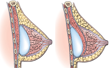 Povećanje dojki
